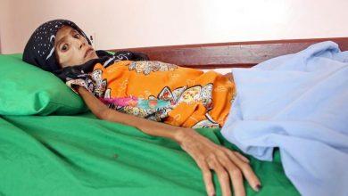 صورة الفتاة اليمينة التي دمرتها الحرب عاشت وأسرتها تحت شجرة ونزل وزنها إلى 10 كليغرامات