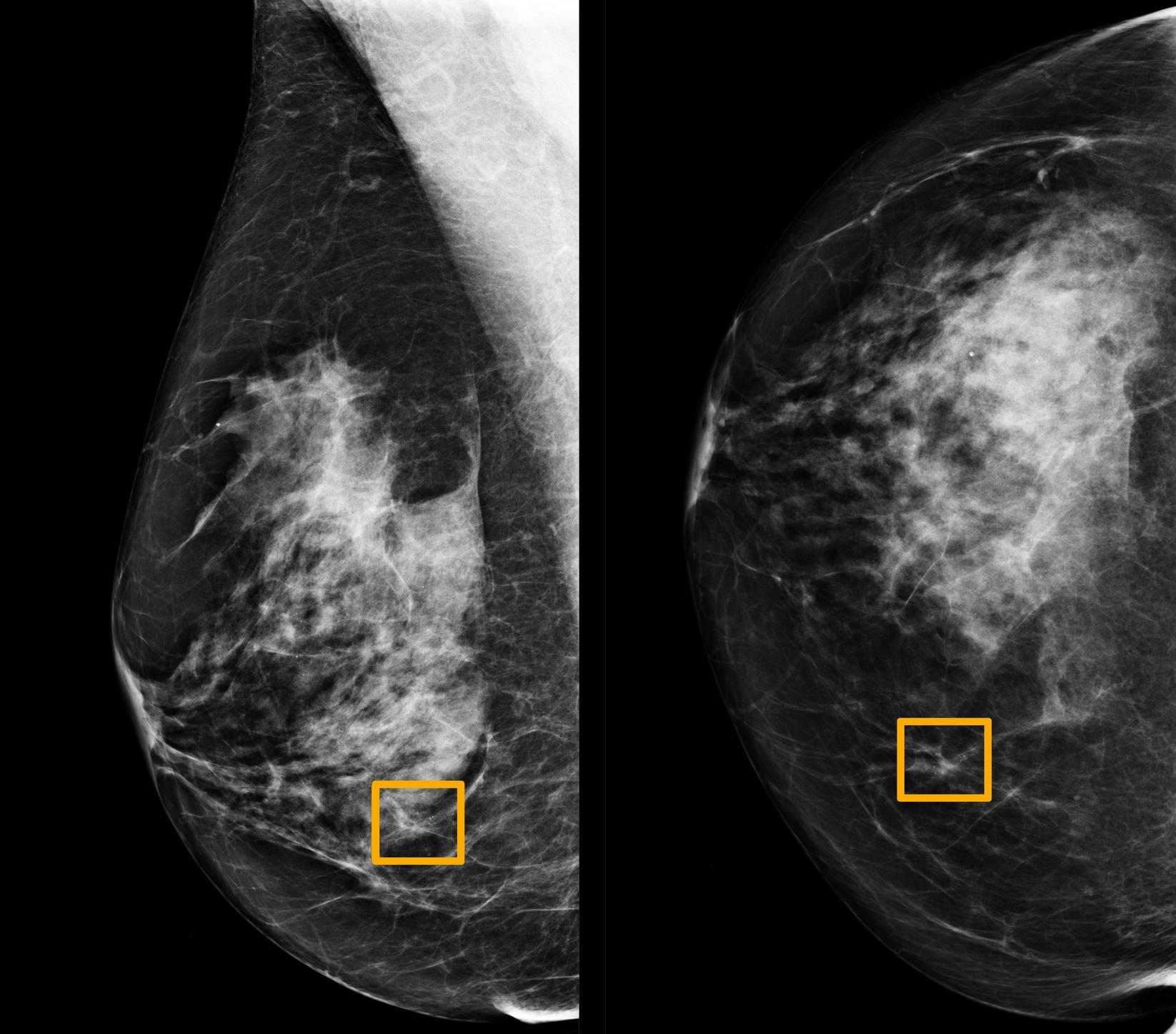 تحميل كتاب سرطان الثدي